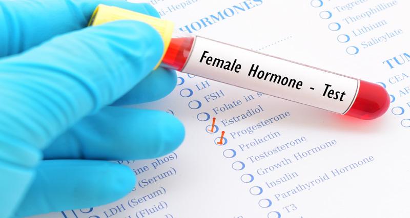 女性ホルモン検査