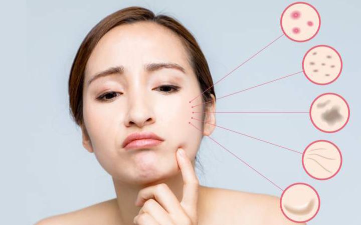ニキビ 痛い 眉毛 【医師監修】埋没毛(埋もれ毛)は自分で治せる?原因と予防・治し方を解説