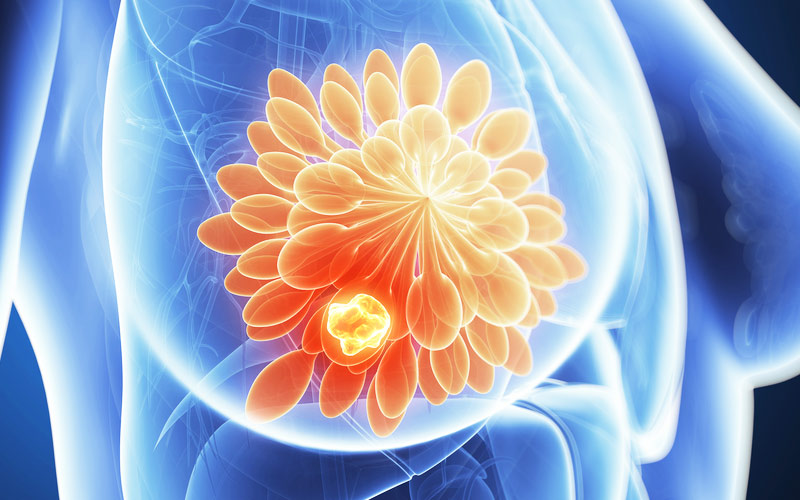 乳がん 不妊 治療