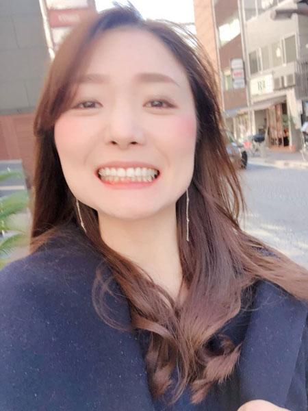 前歯の矯正でかかった期間はたった3ヶ月!