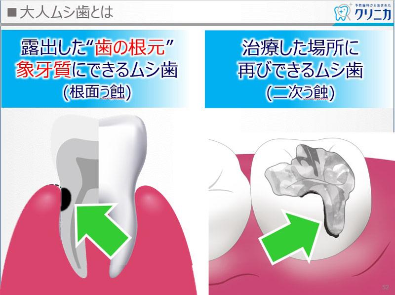 大人ムシ歯とは 図