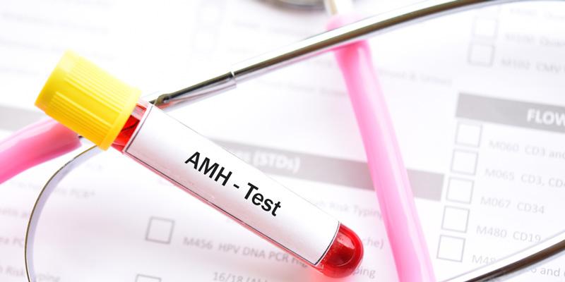 AMH検査