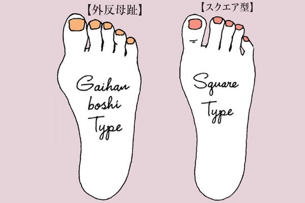 うおの目ができやすい足の形