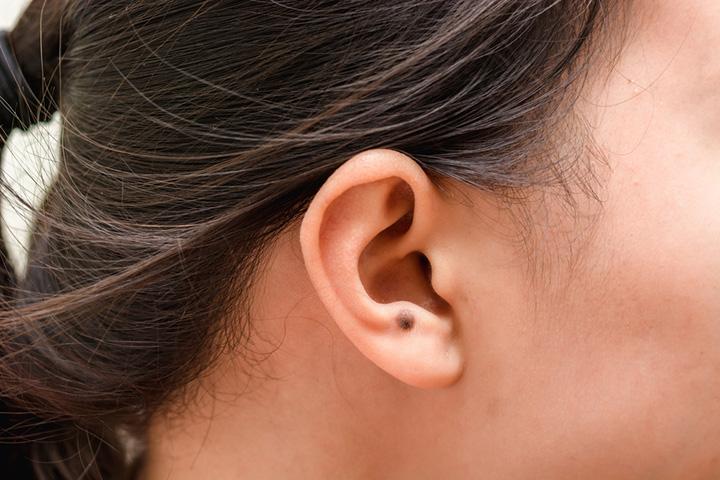 耳たぶ の 後ろ の ほくろ [ほくろ占い]耳たぶのほくろの意味16選!金運でお金持ち?